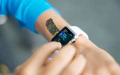 Una IA nello smartwatch rileva le crisi epilettiche